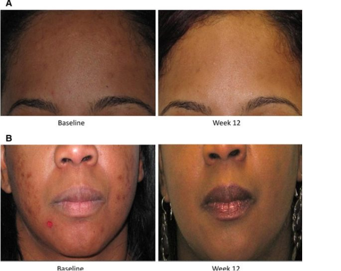 Vitamin B5 The Acne Solution Fxmed